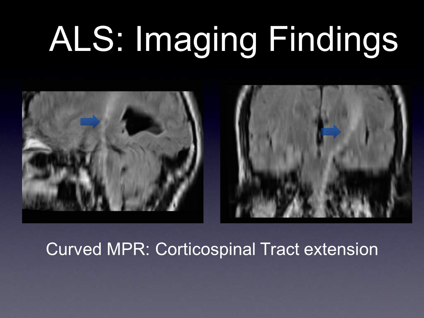 Curved MPR: Corticospinal Tract extension