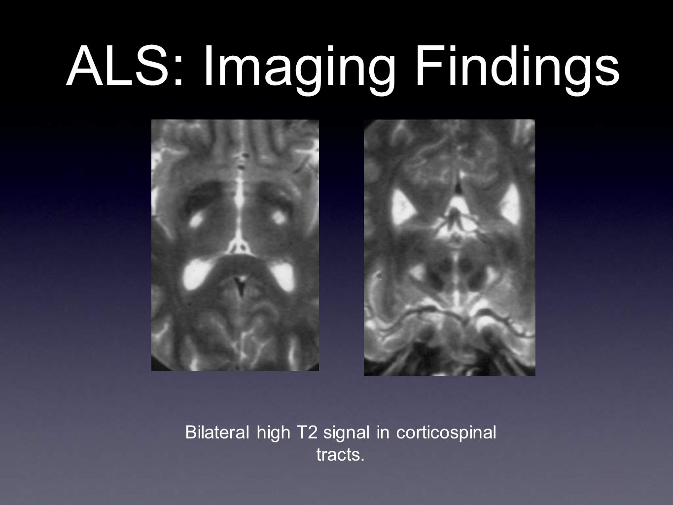 Bilateral high T2 signal in corticospinal tracts.