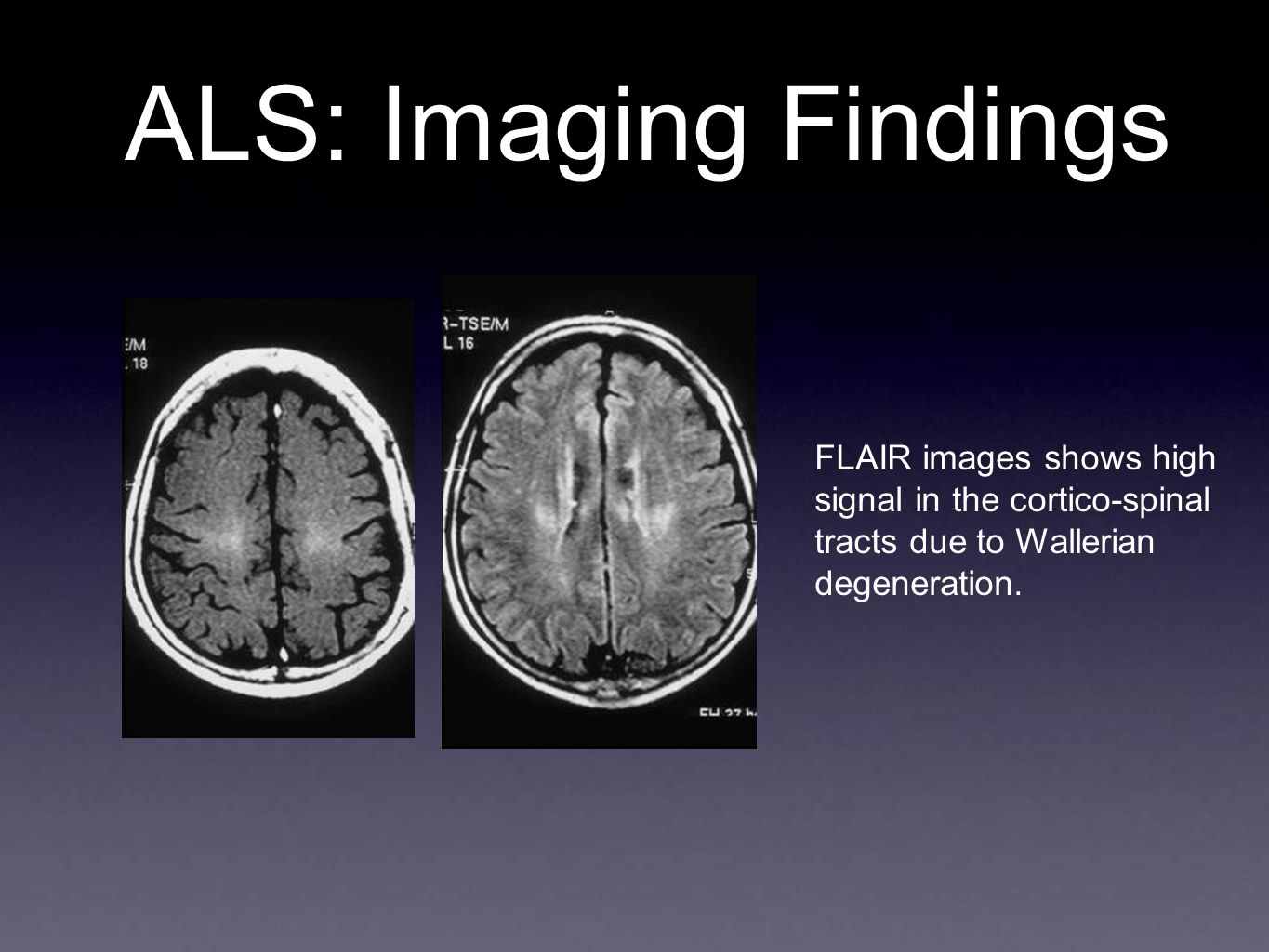 ALS: Imaging Findings FLAIR images shows high signal in the cortico-spinal tracts due to Wallerian degeneration.