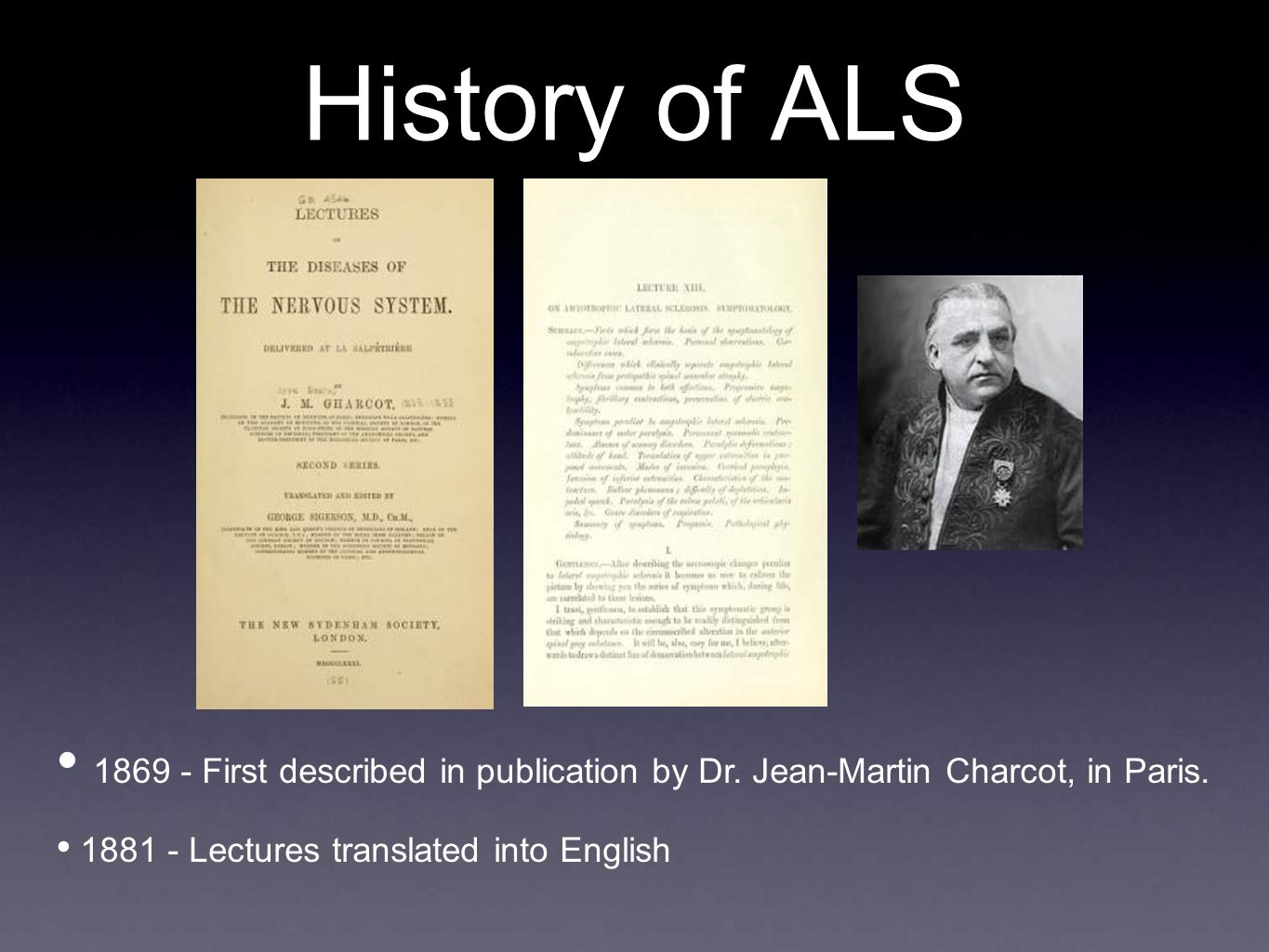 History of ALS First described in publication by Dr.