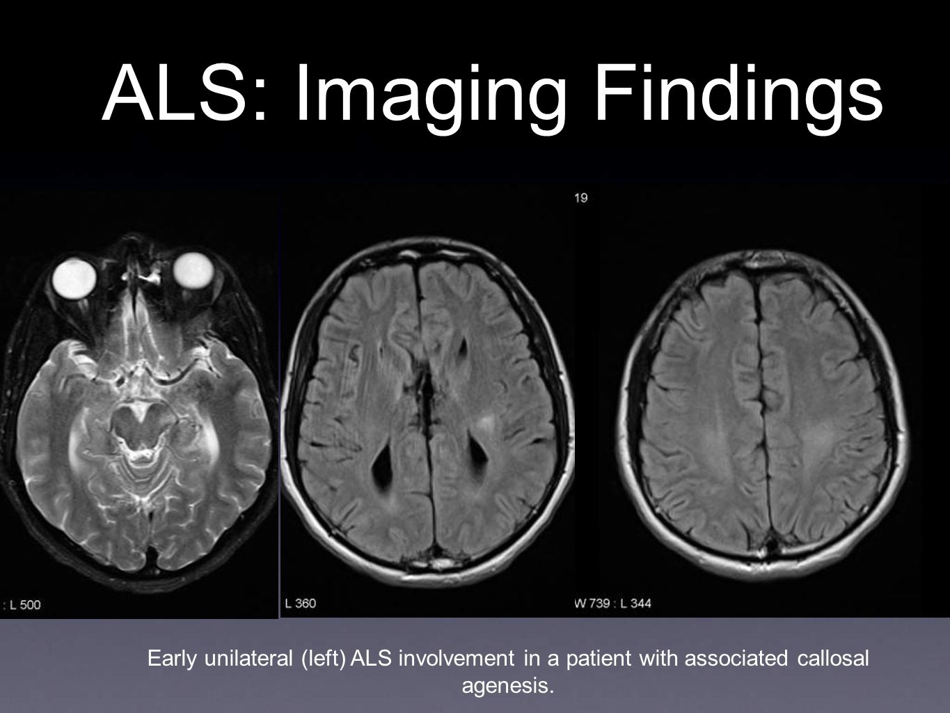 ALS: Imaging Findings Early unilateral (left) ALS involvement in a patient with associated callosal agenesis.