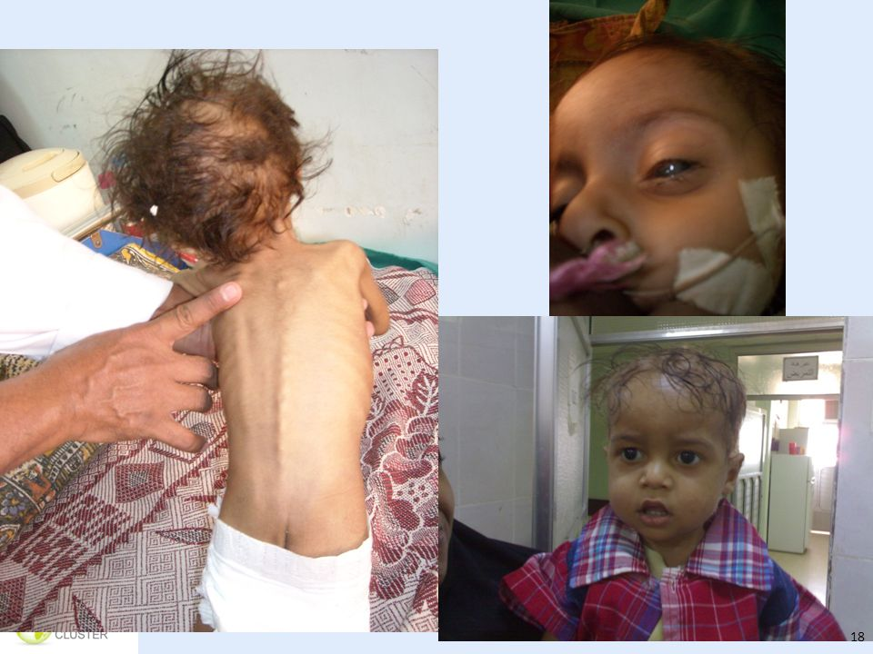 This is the same Yemeni child being admitted with SAM, in the hospital being treated for SAM with complications and walking out of the hospital cured. Demonstrates the role the health system played in saving his life. However should not have been there in the first place – the role of prevention