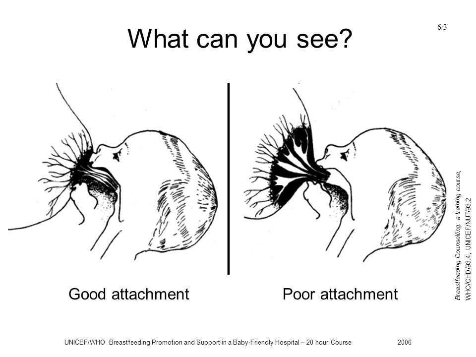What can you see Good attachment Poor attachment 6/3