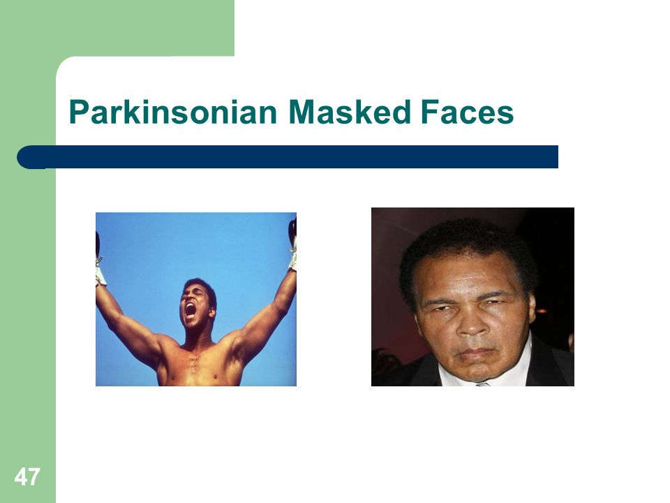Parkinsonian Masked Faces