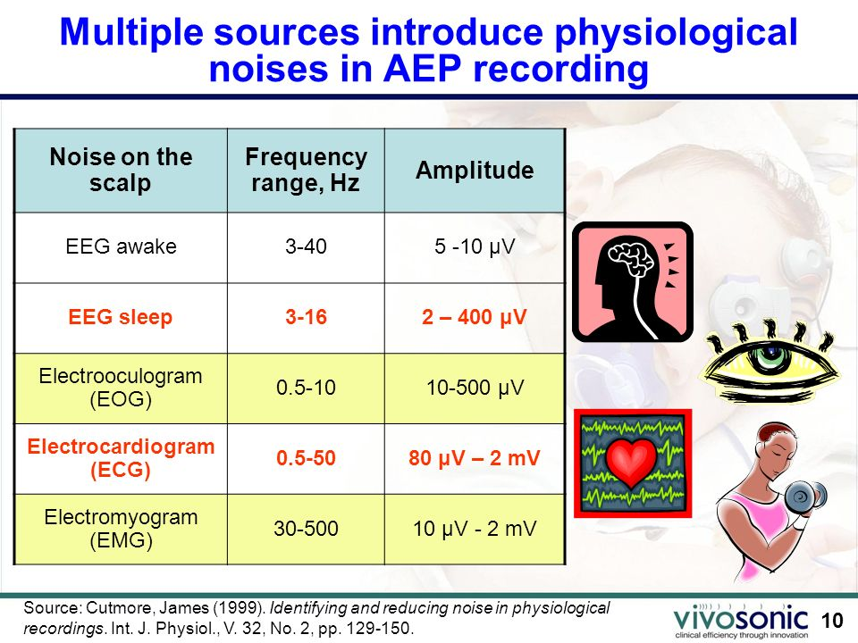 Multiple sources introduce physiological noises in AEP recording