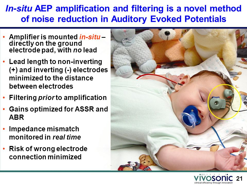 In-situ AEP amplification and filtering is a novel method of noise reduction in Auditory Evoked Potentials