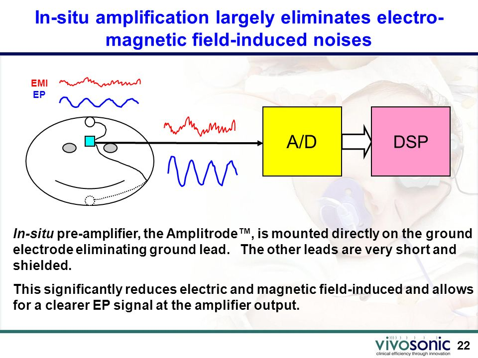 In-situ amplification largely eliminates electro-magnetic field-induced noises