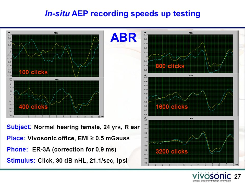 In-situ AEP recording speeds up testing