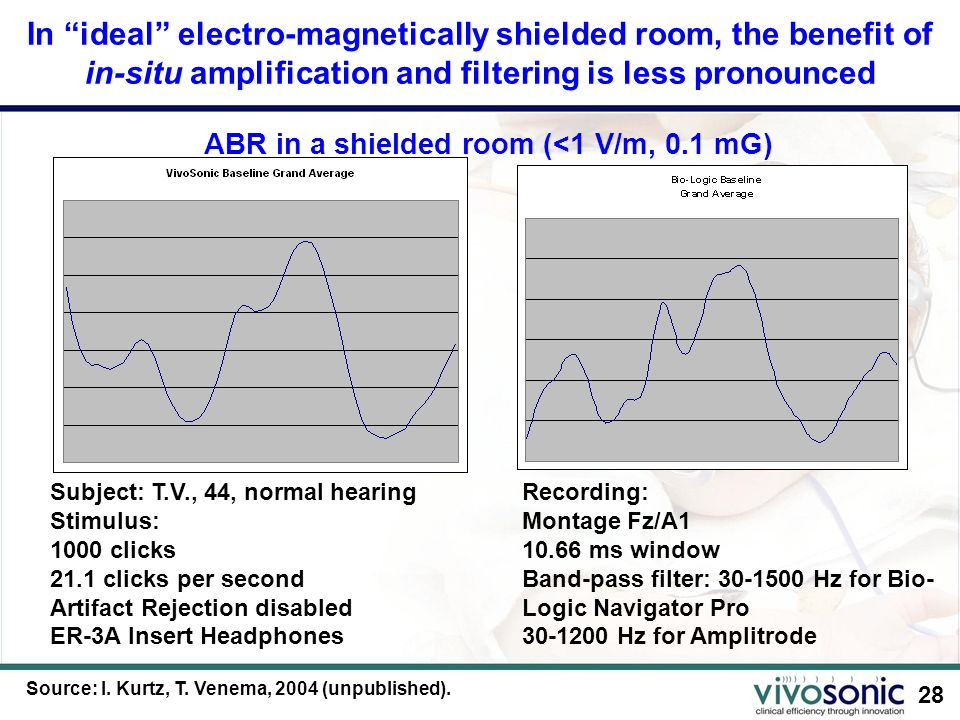 ABR in a shielded room (<1 V/m, 0.1 mG)