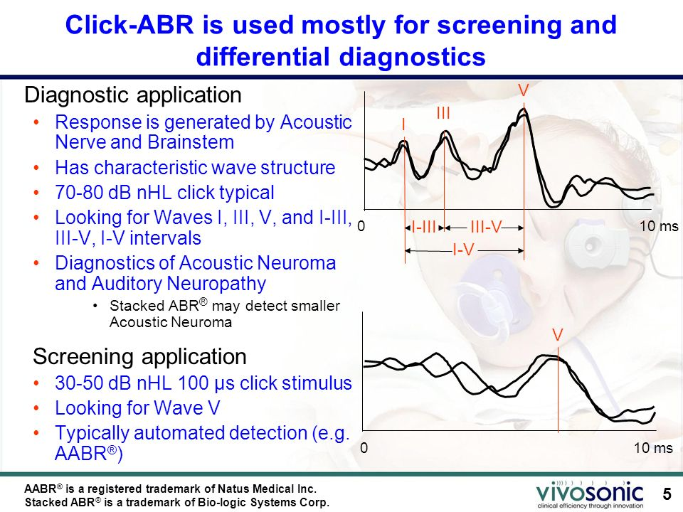 Click-ABR is used mostly for screening and differential diagnostics