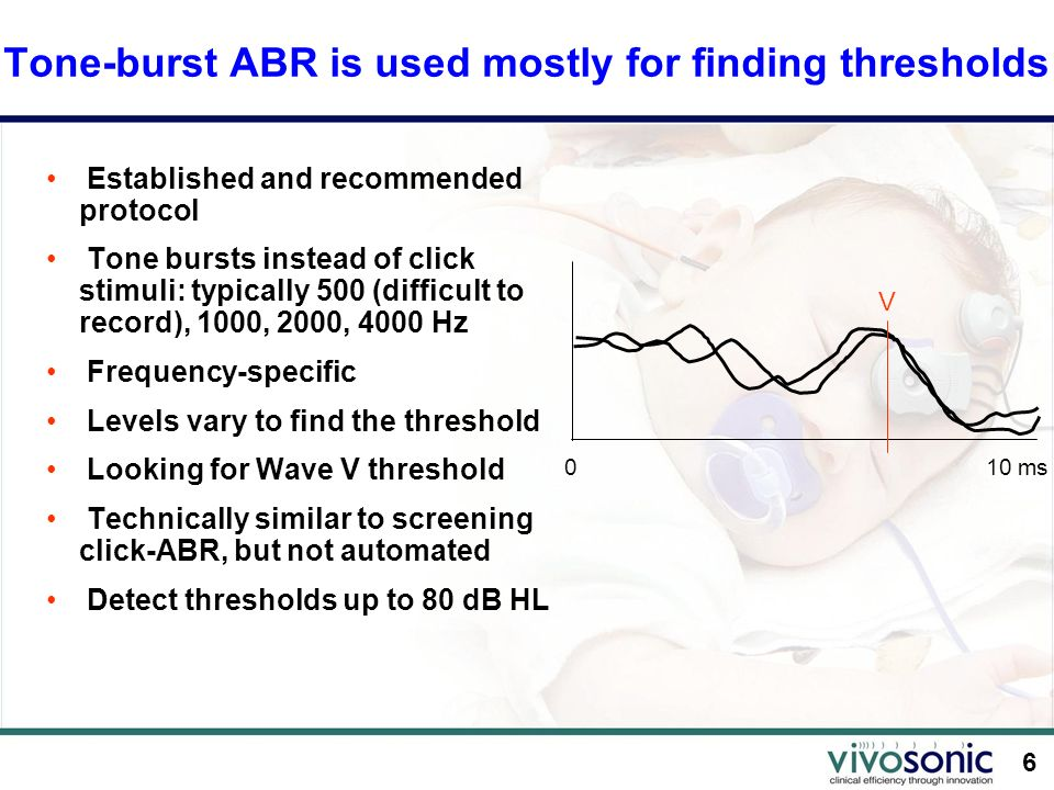 Tone-burst ABR is used mostly for finding thresholds