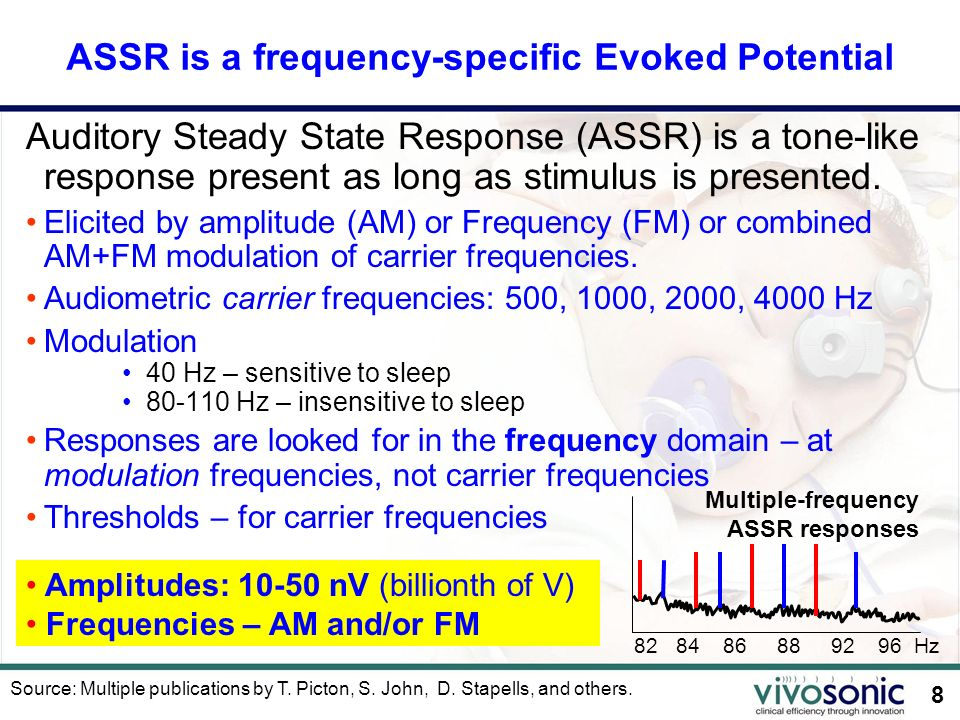 ASSR is a frequency-specific Evoked Potential