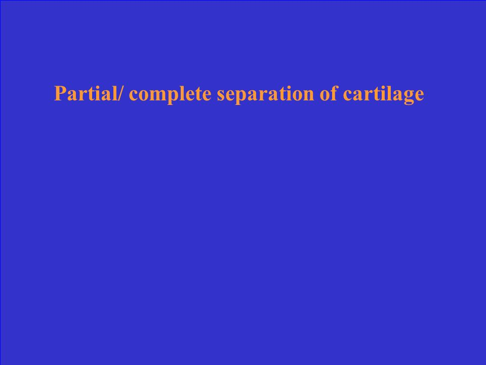 Partial/ complete separation of cartilage