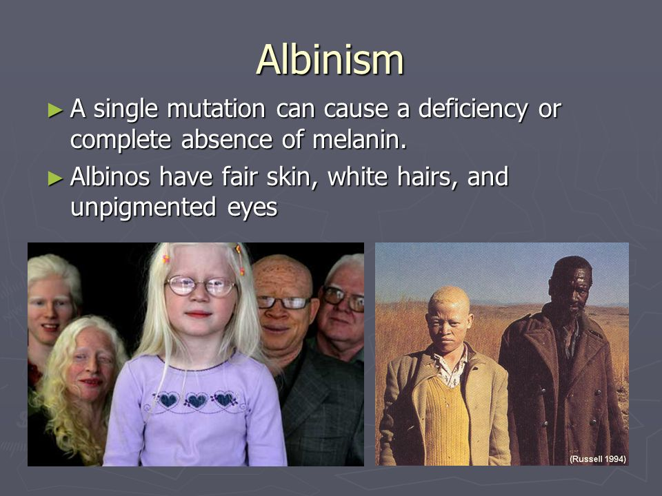 Albinism A single mutation can cause a deficiency or complete absence of melanin.