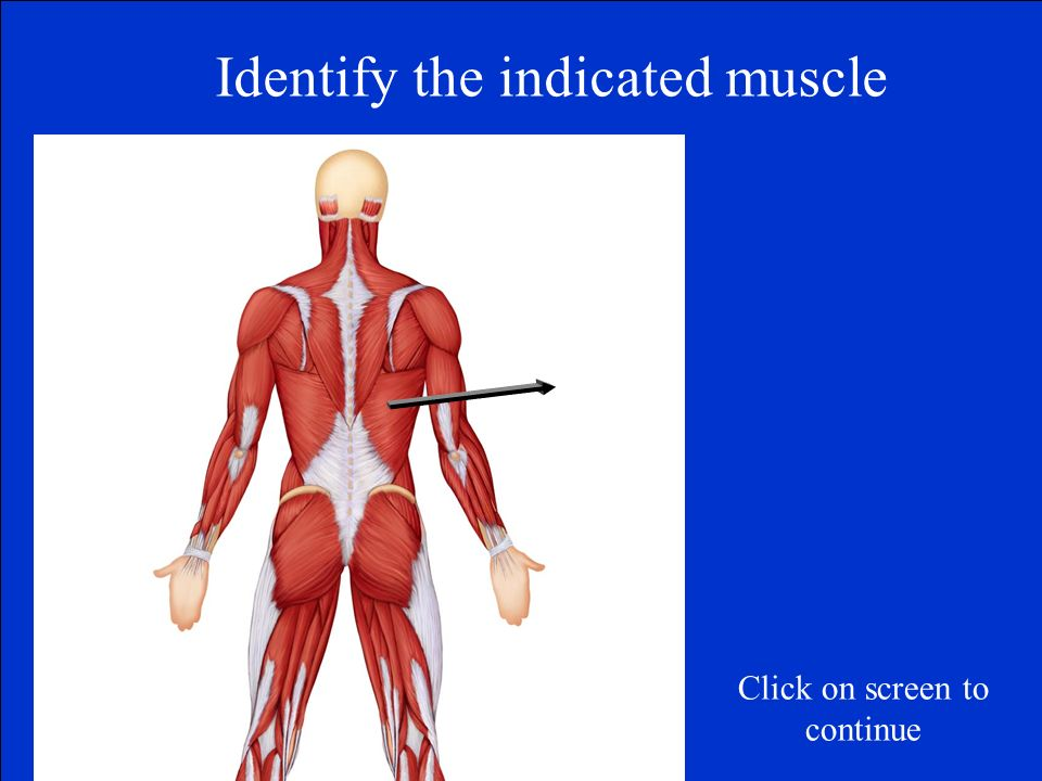 Identify the indicated muscle