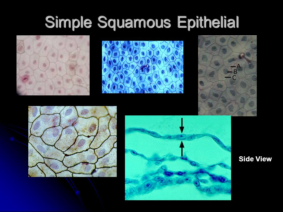 Simple Squamous Epithelial