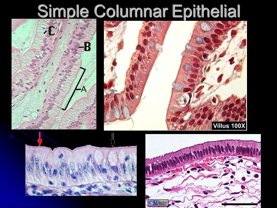 Simple Columnar Epithelial