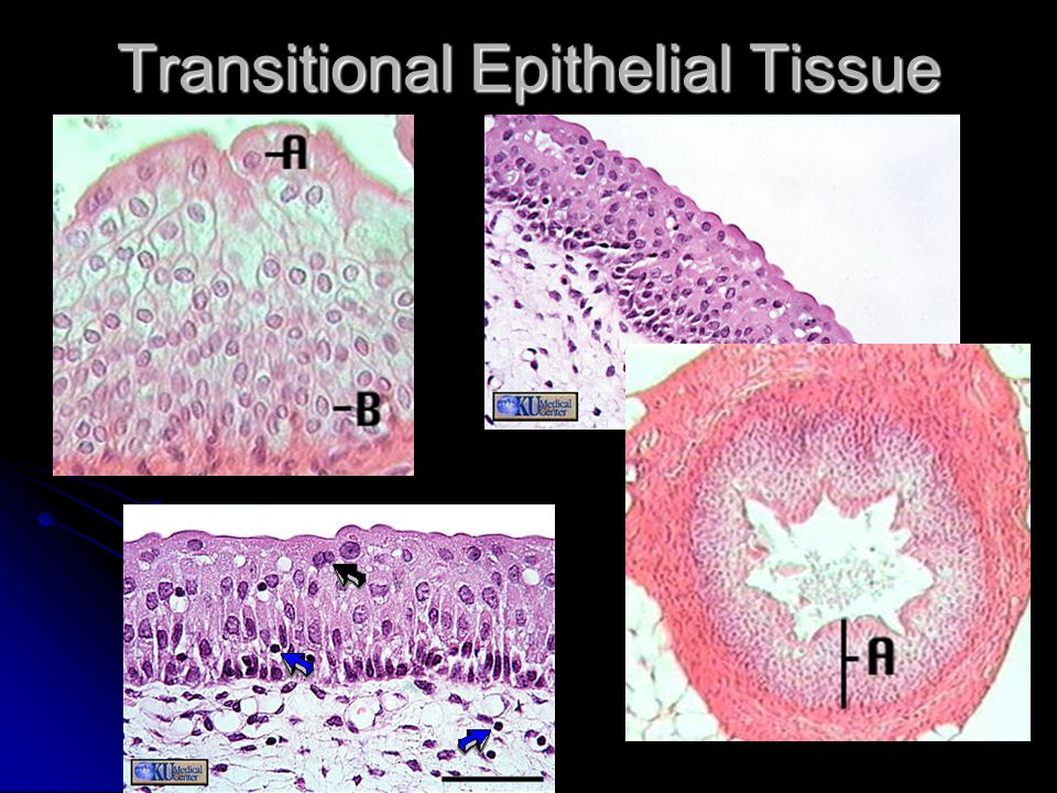 Transitional Epithelial Tissue