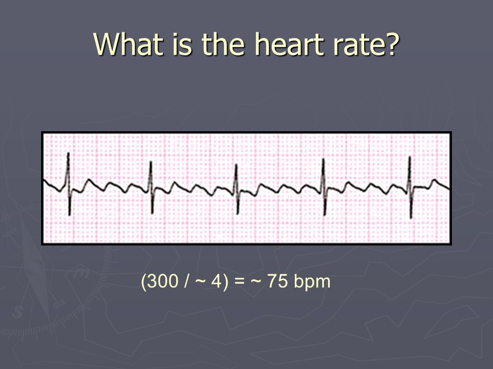 What is the heart rate (300 / ~ 4) = ~ 75 bpm
