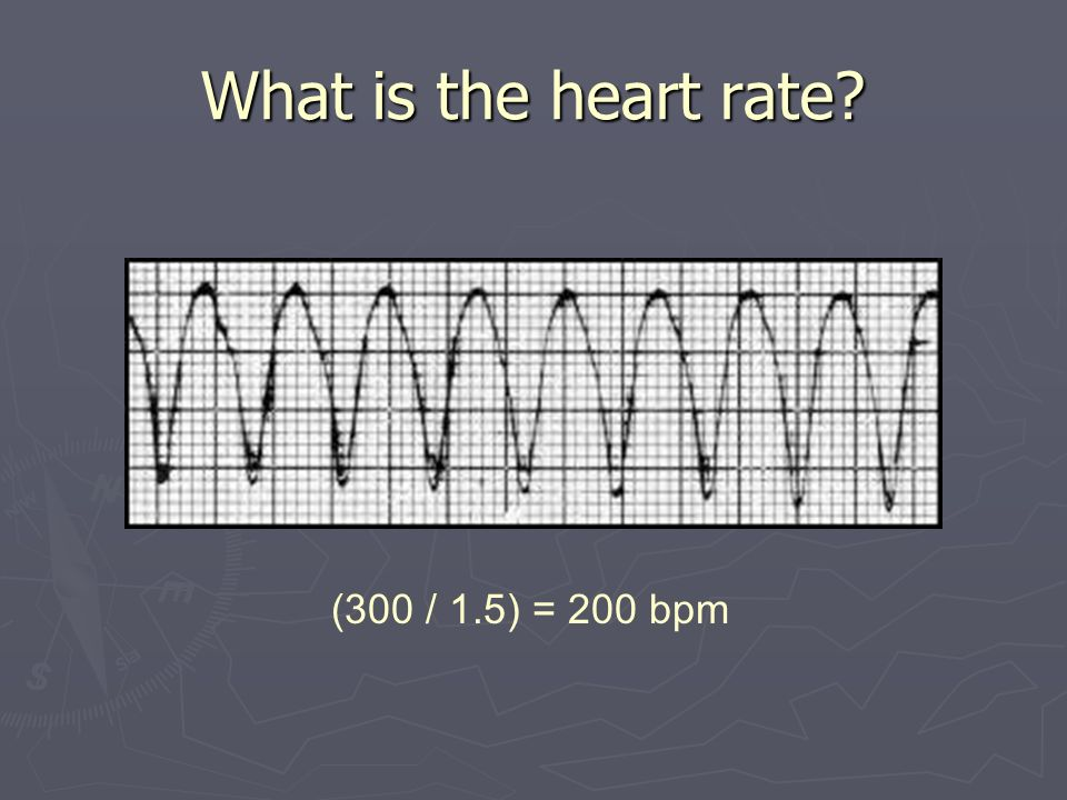 What is the heart rate (300 / 1.5) = 200 bpm