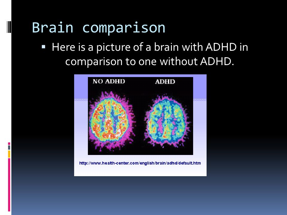 Brain Differences In Adhd >> Attention Deficit Hyperactivity Disorder Ppt Download