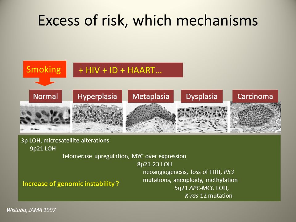 Excess of risk, which mechanisms