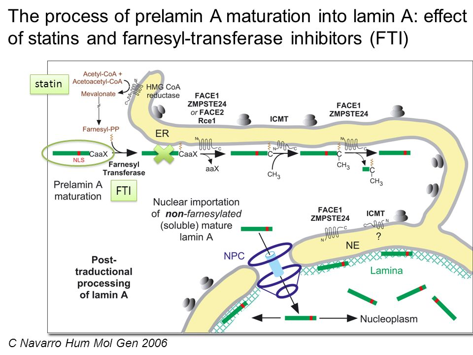 The process of prelamin A maturation into lamin A: effect of statins and farnesyl-transferase inhibitors (FTI)