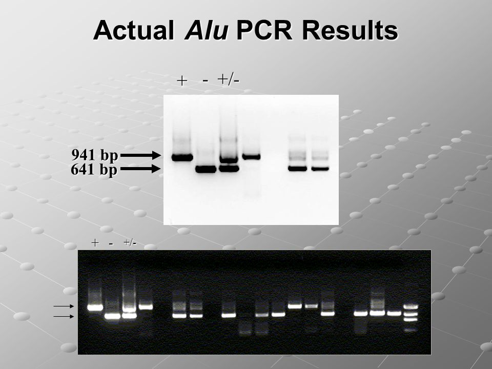 Actual Alu PCR Results 941 bp 641 bp - +/ /-