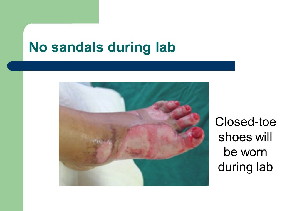 Closed-toe shoes will be worn during lab