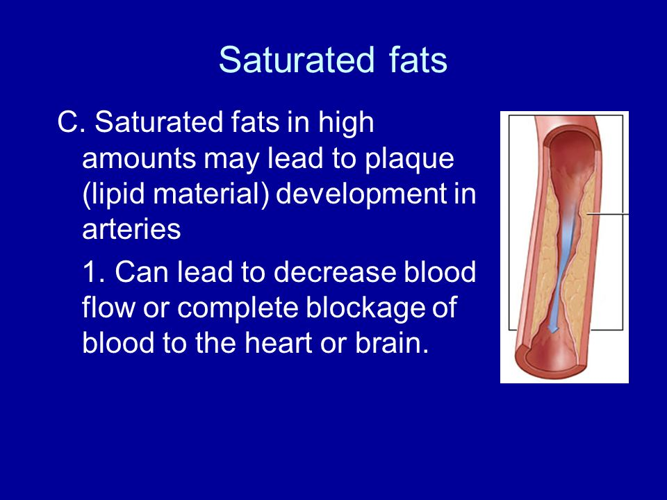 Saturated fats C. Saturated fats in high amounts may lead to plaque (lipid material) development in arteries.