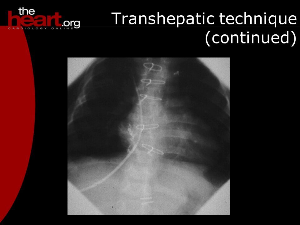 Transhepatic technique (continued)