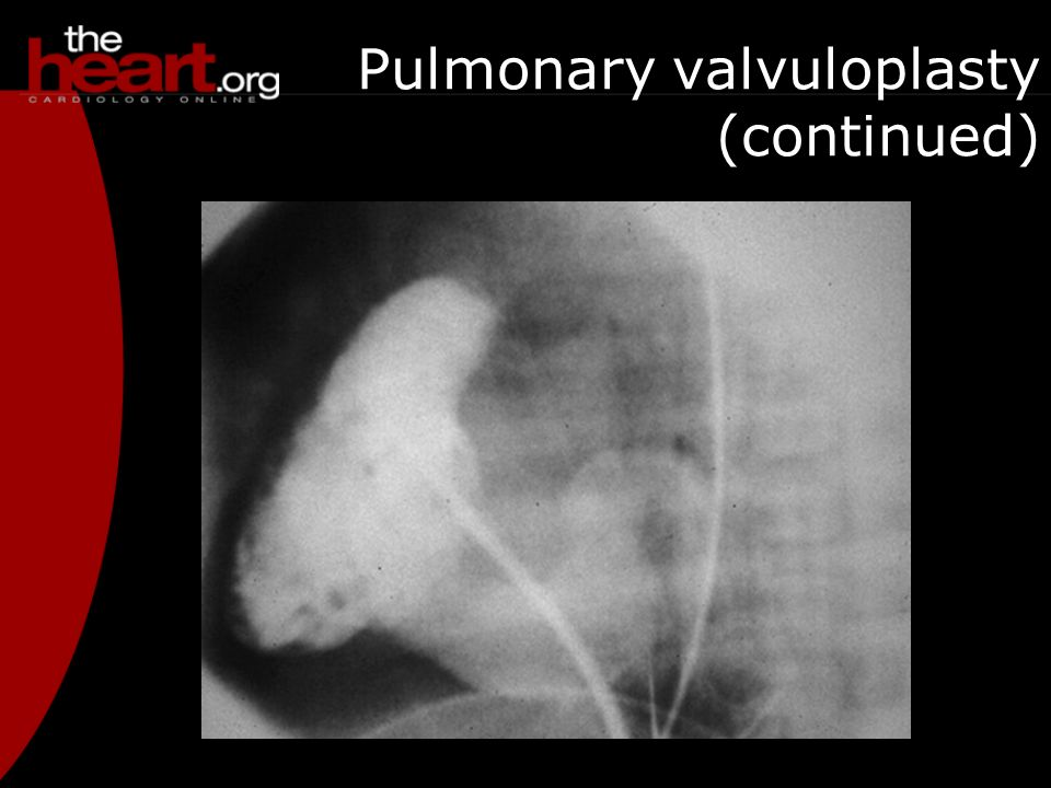 Pulmonary valvuloplasty (continued)