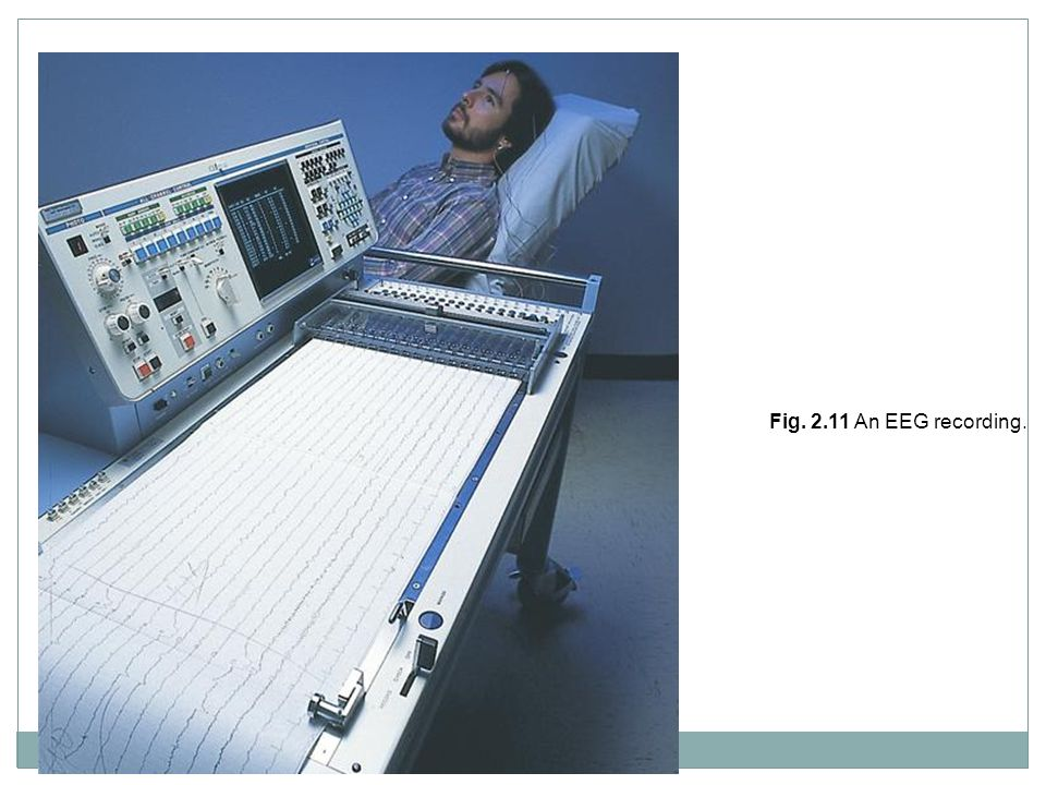 Fig. 2.11 An EEG recording.