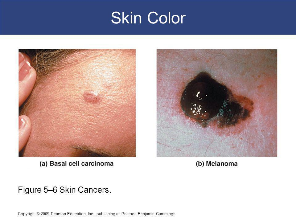 Skin Color Figure 5–6 Skin Cancers.