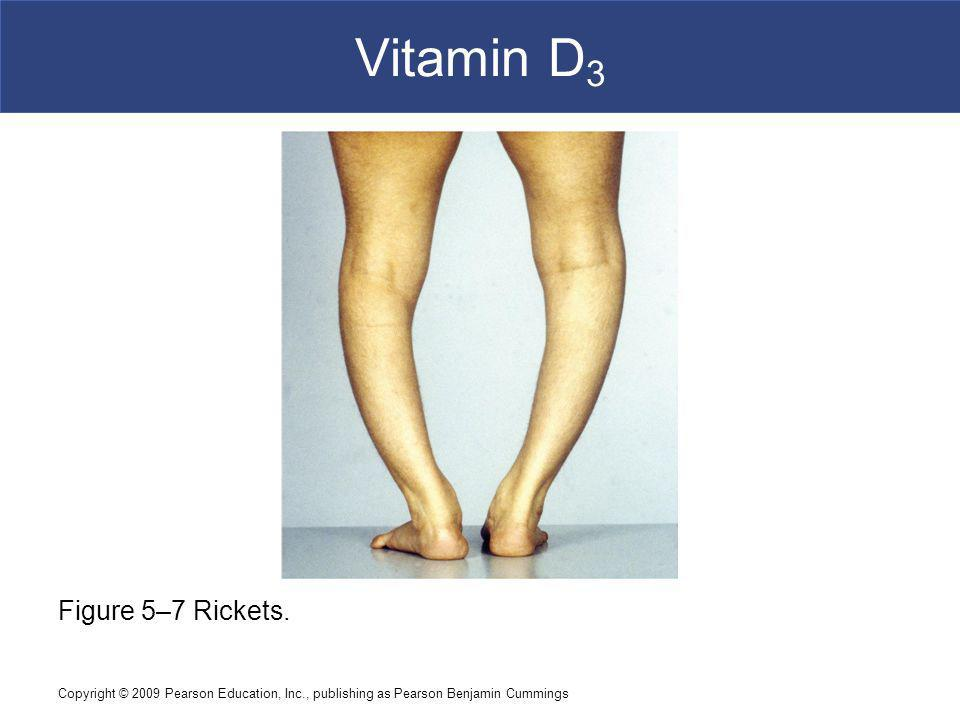 Vitamin D3 Figure 5–7 Rickets.