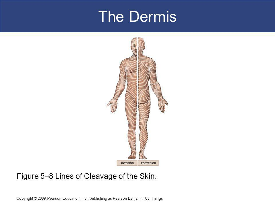 The Dermis Figure 5–8 Lines of Cleavage of the Skin.