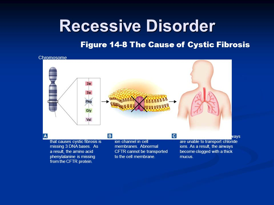 Recessive Disorder Figure 14-8 The Cause of Cystic Fibrosis