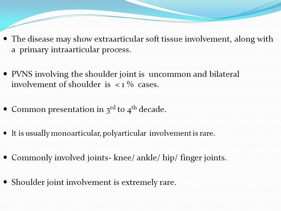 Ghimbir ?i dureri articulare