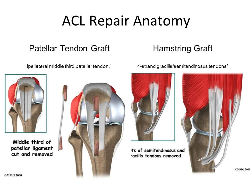 Acl Reconstruction Anatomy And Methods Ppt Video Online Download