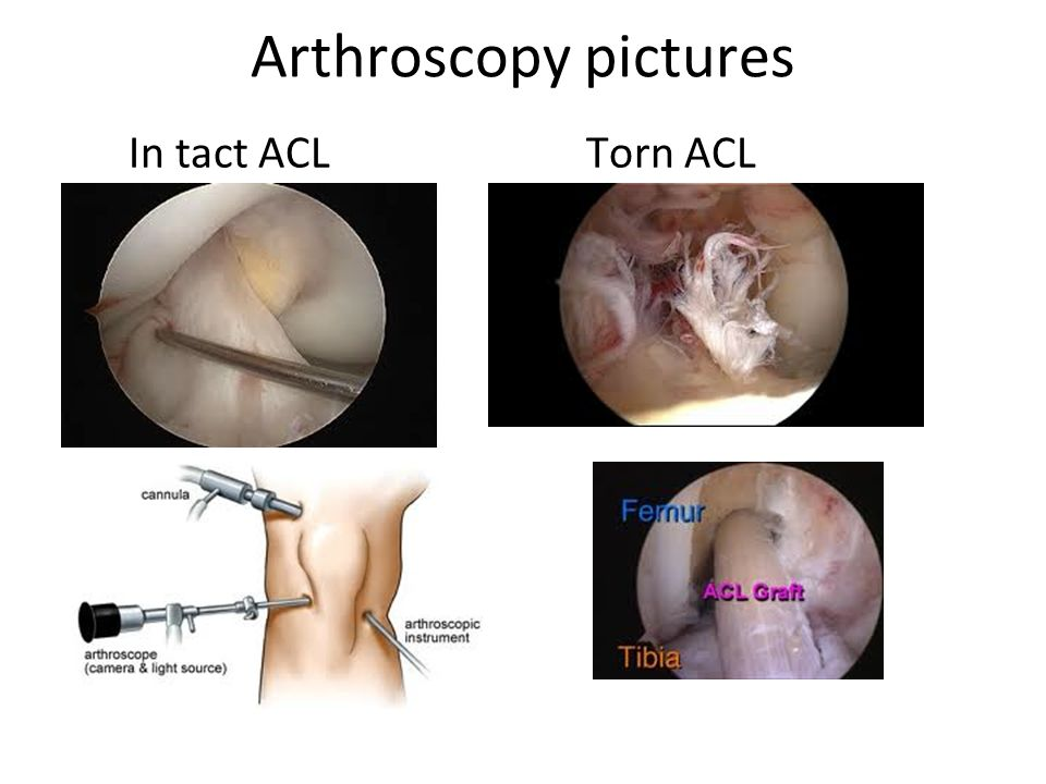 ACL Reconstruction Anatomy and Methods. - ppt video online download