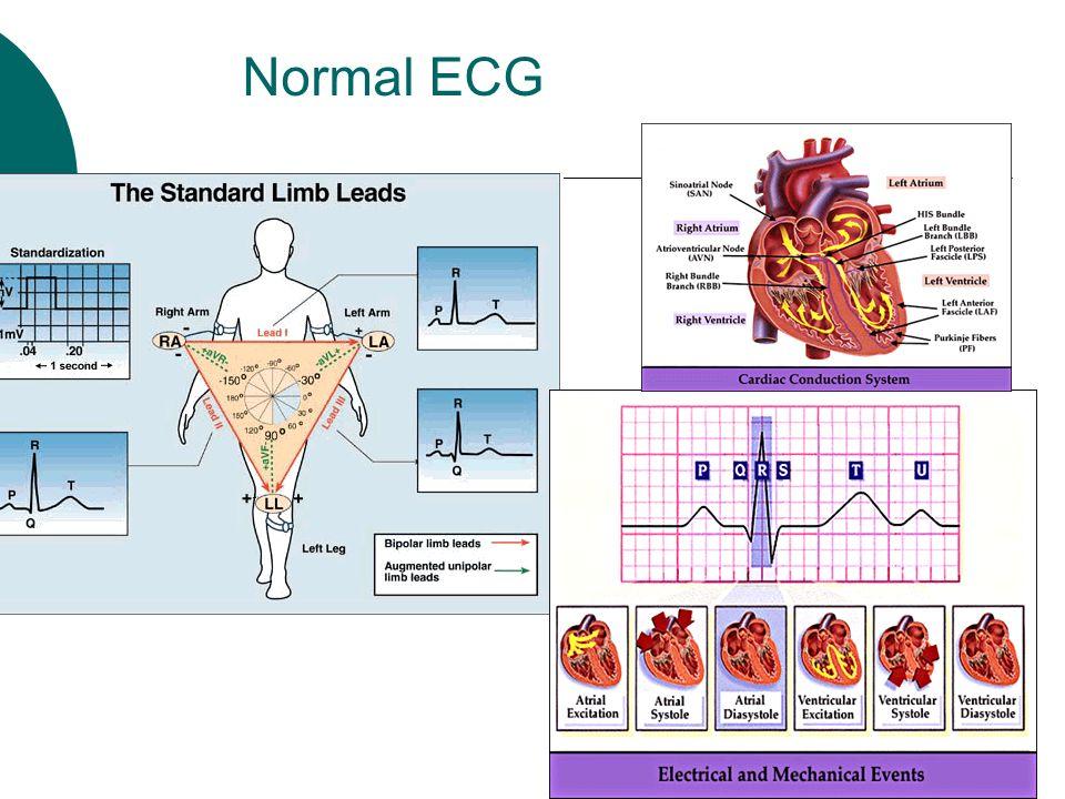 Instrumental Methods Of Examination Of Cardiovascular System Ppt