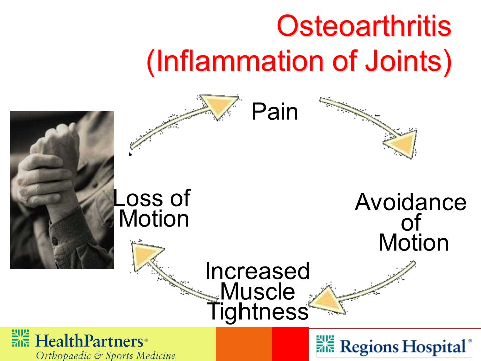 Osteoarthritis (Inflammation of Joints)