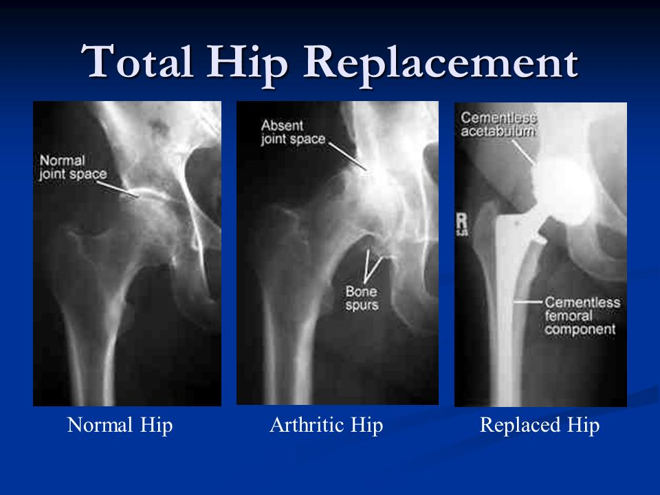Total Hip Replacement Normal Hip Arthritic Hip Replaced Hip