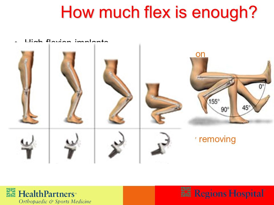How much flex is enough High flexion implants