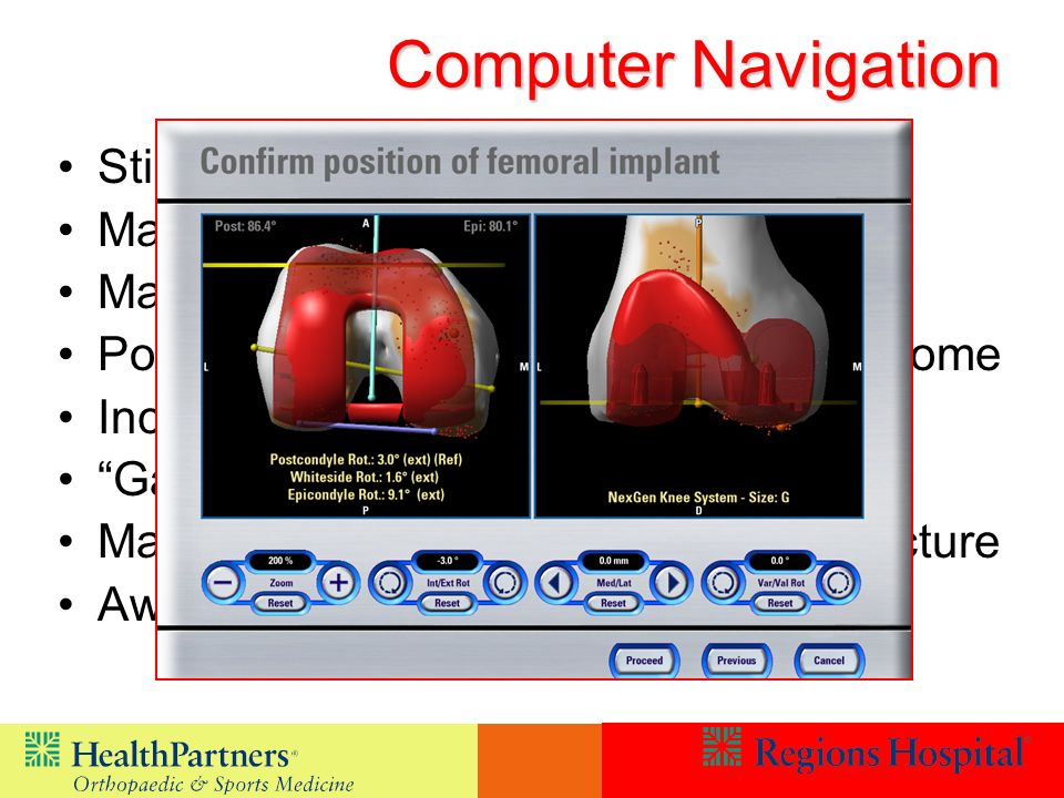 Computer Navigation Still Controversial May improve overall alignment