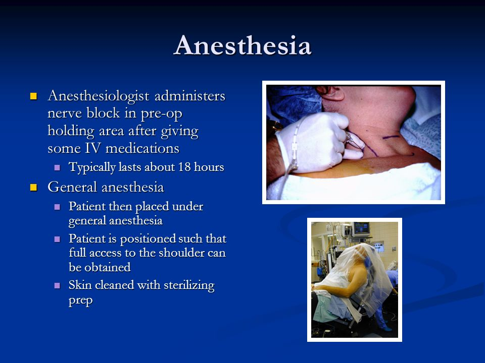 Anesthesia Anesthesiologist administers nerve block in pre-op holding area after giving some IV medications.
