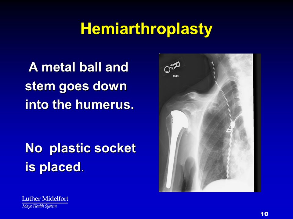 Hemiarthroplasty A metal ball and stem goes down into the humerus.