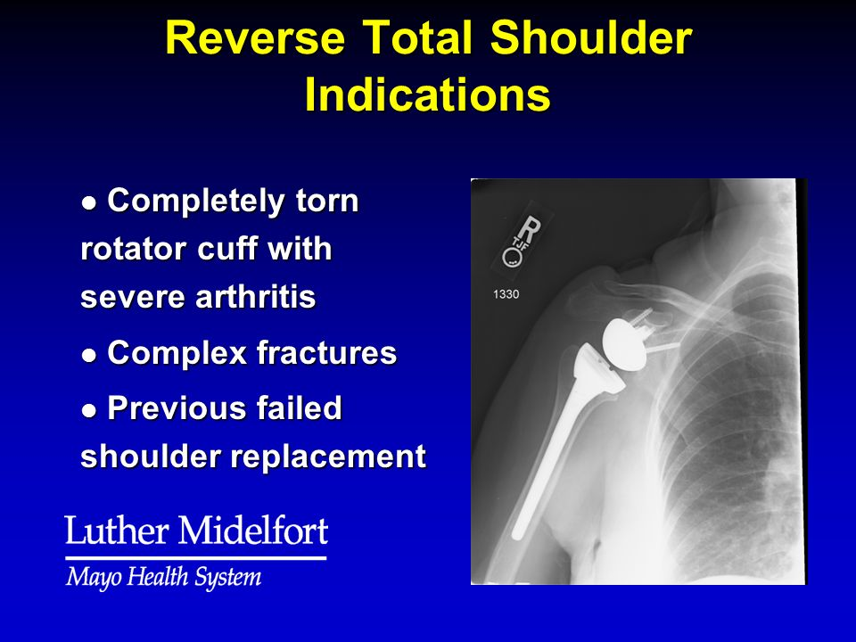 Reverse Total Shoulder Indications