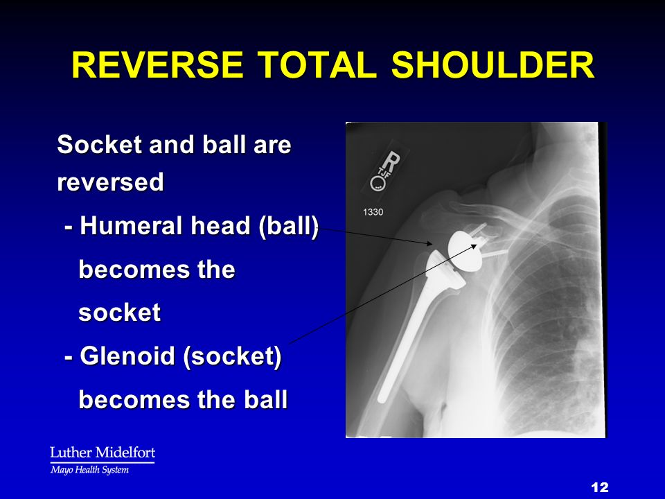 REVERSE TOTAL SHOULDER