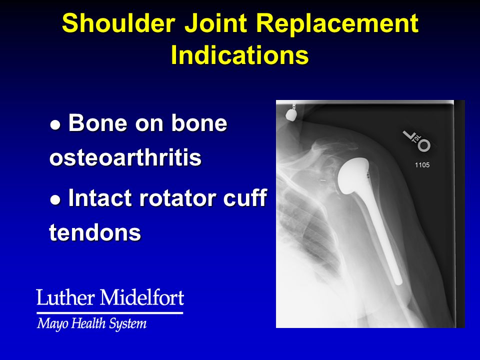Shoulder Joint Replacement Indications